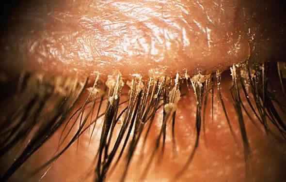 Clínica de lentes de contacto especiales - Blefaritis